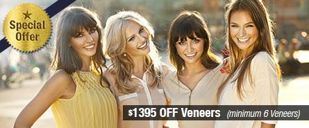 Veneers Special Offer