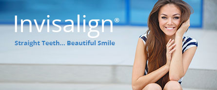 Invisalign Interview