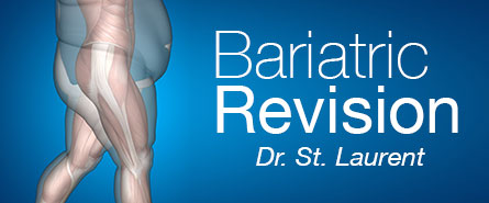 Bariatric Revision