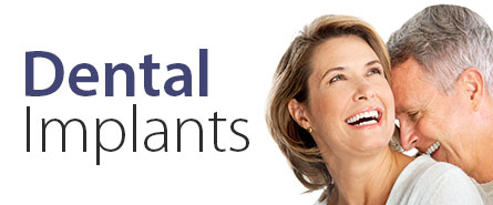 Dental Implants in The Woodlands